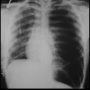 Pneumothorax in the ICU